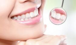 גלינה-גובר-מרפאת-שיניים-הלבנה